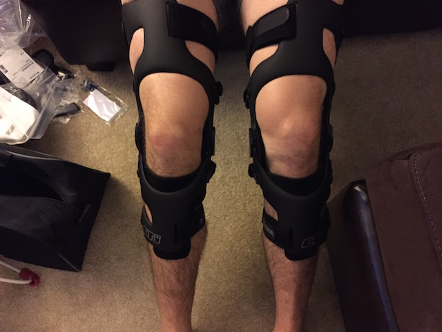 Knee Support – Braces